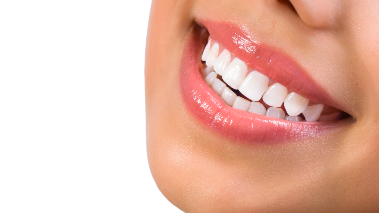 Smile With Veneers | Veneers Fayetteville AR | Dental Blog