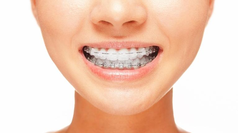 Post Orthodontic Care Blog | Fayetteville AR