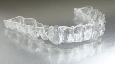Clear Braces Fayetteville AR | Scott J Stephens Dental Blog